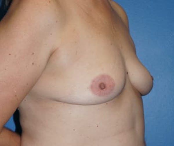 Breast Augmentation Gallery - Patient 5750106 - Image 1