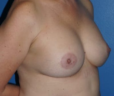 Breast Augmentation Gallery - Patient 5750106 - Image 2