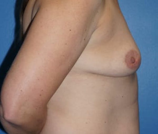 Breast Augmentation Gallery - Patient 5750106 - Image 3