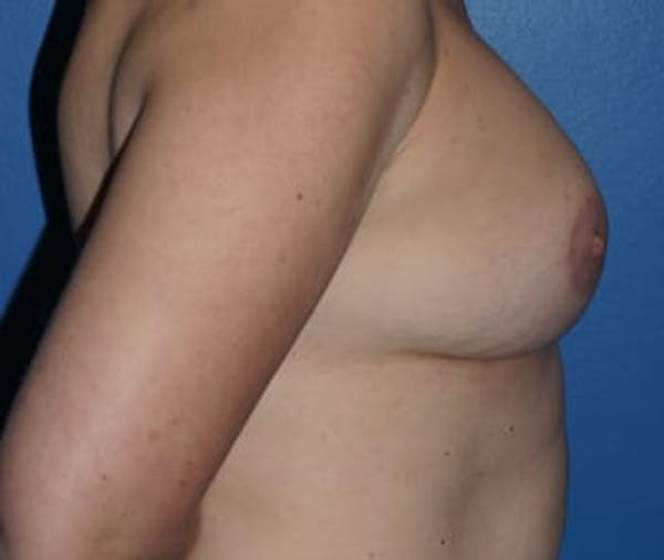 Breast Augmentation Gallery - Patient 5750106 - Image 4