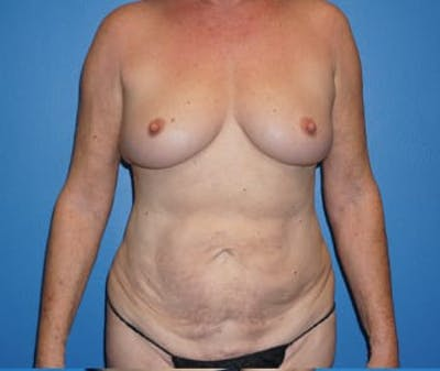 Breast Augmentation Gallery - Patient 5750108 - Image 1