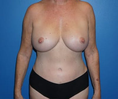 Breast Augmentation Gallery - Patient 5750108 - Image 2