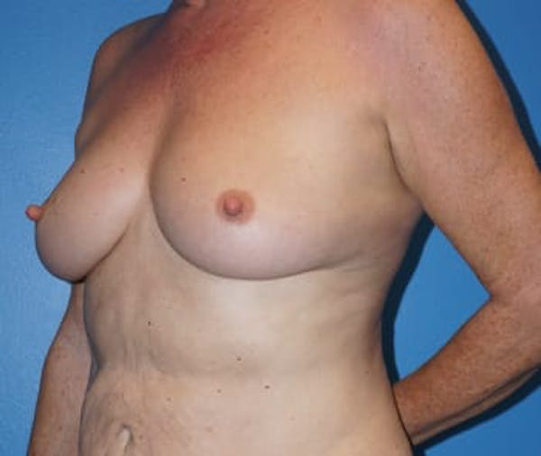Breast Augmentation Gallery - Patient 5750108 - Image 3