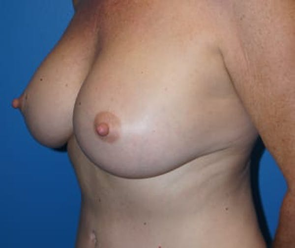 Breast Augmentation Gallery - Patient 5750108 - Image 4
