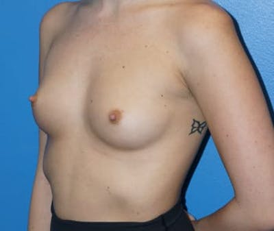 Breast Augmentation Gallery - Patient 5750107 - Image 1