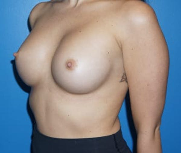 Breast Augmentation Gallery - Patient 5750107 - Image 2