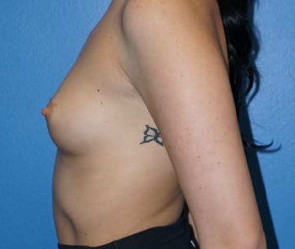 Breast Augmentation Gallery - Patient 5750107 - Image 3