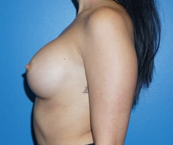 Breast Augmentation Gallery - Patient 5750107 - Image 4