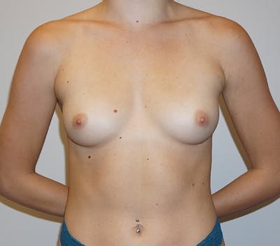 Breast Augmentation Gallery - Patient 11186805 - Image 1