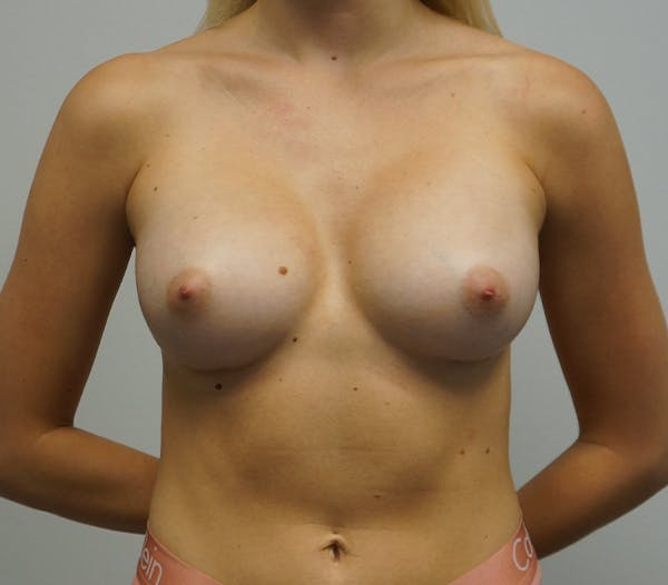 Breast Augmentation Gallery - Patient 11186805 - Image 2