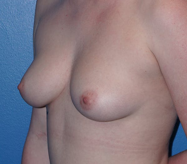 Breast Augmentation Gallery - Patient 11186806 - Image 1