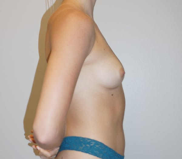 Breast Augmentation Gallery - Patient 11186805 - Image 3
