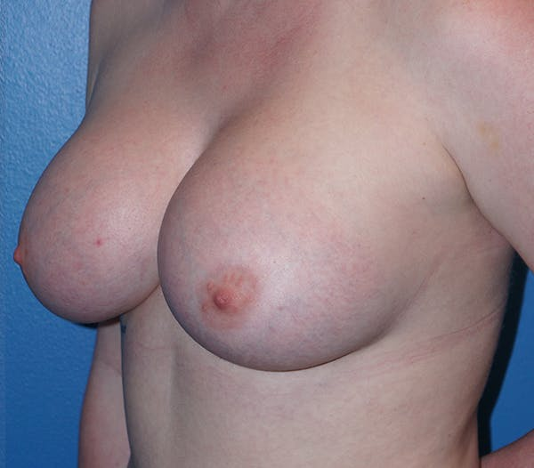 Breast Augmentation Gallery - Patient 11186806 - Image 2