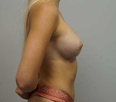 Breast Augmentation Gallery - Patient 11186805 - Image 4