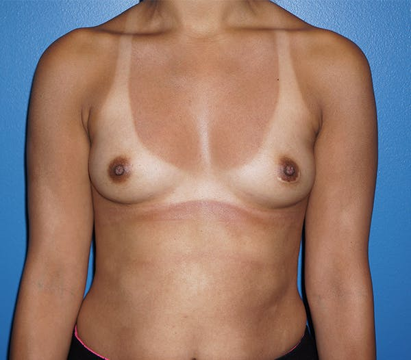 Breast Augmentation Gallery - Patient 11186807 - Image 1