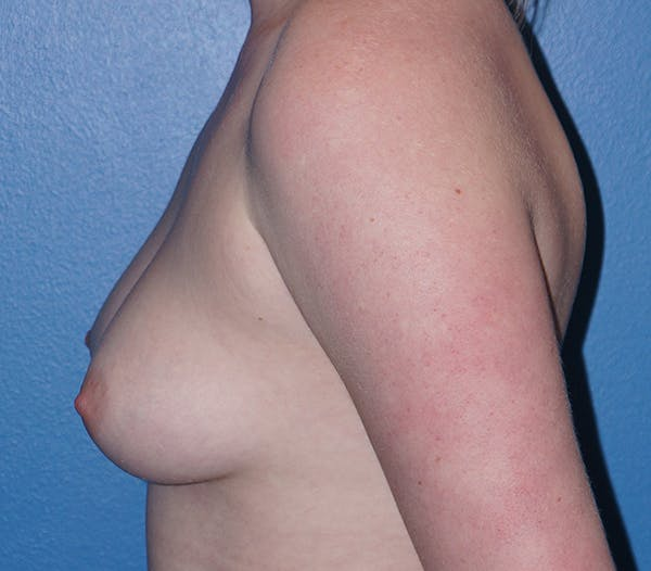 Breast Augmentation Gallery - Patient 11186806 - Image 3