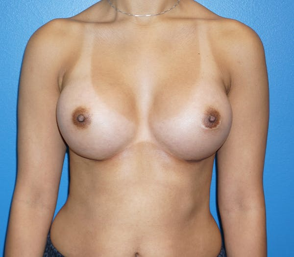 Breast Augmentation Gallery - Patient 11186807 - Image 2