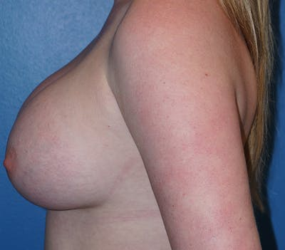 Breast Augmentation Gallery - Patient 11186806 - Image 4