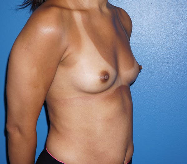 Breast Augmentation Gallery - Patient 11186807 - Image 3
