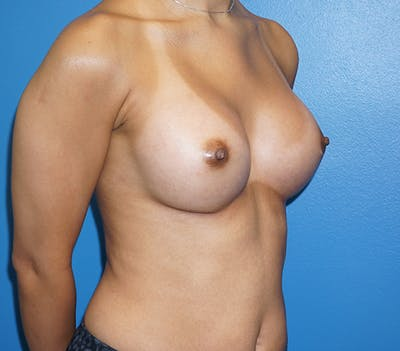 Breast Augmentation Gallery - Patient 11186807 - Image 4