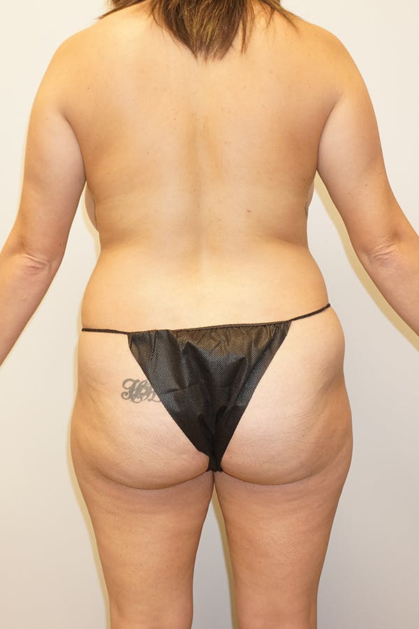 Mommy Makeover Gallery - Patient 11186837 - Image 1