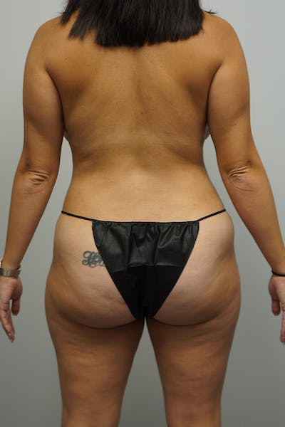 Mommy Makeover Gallery - Patient 11186837 - Image 2