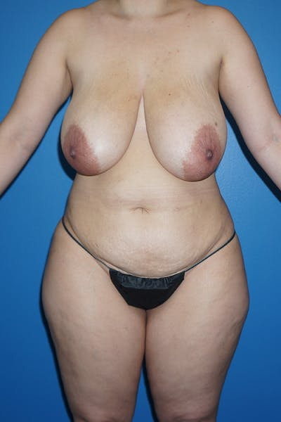 Mommy Makeover Gallery - Patient 11186838 - Image 1