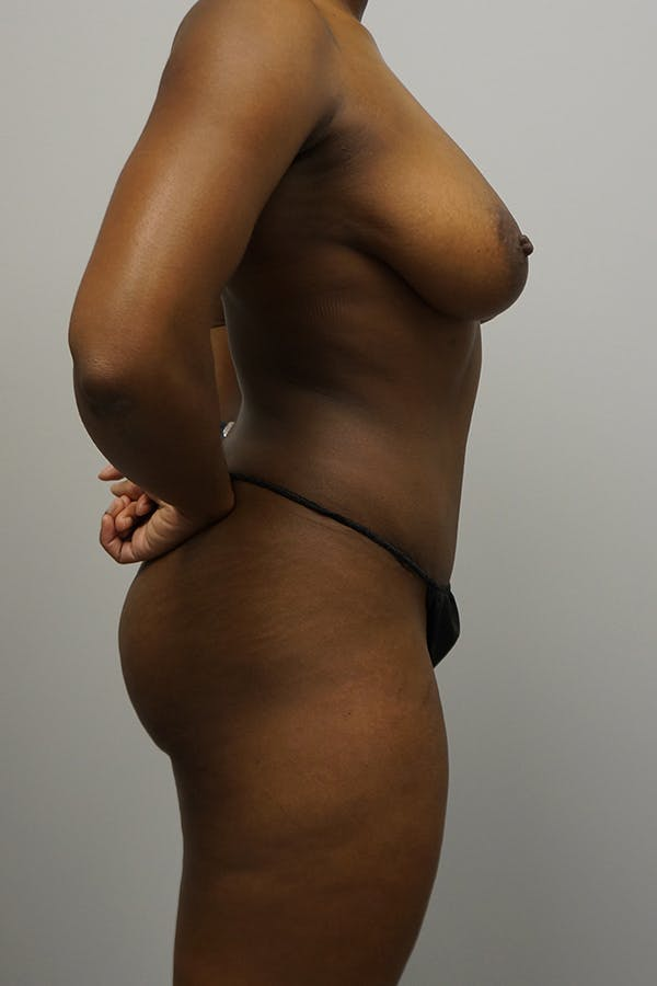 Mommy Makeover Gallery - Patient 11186836 - Image 4