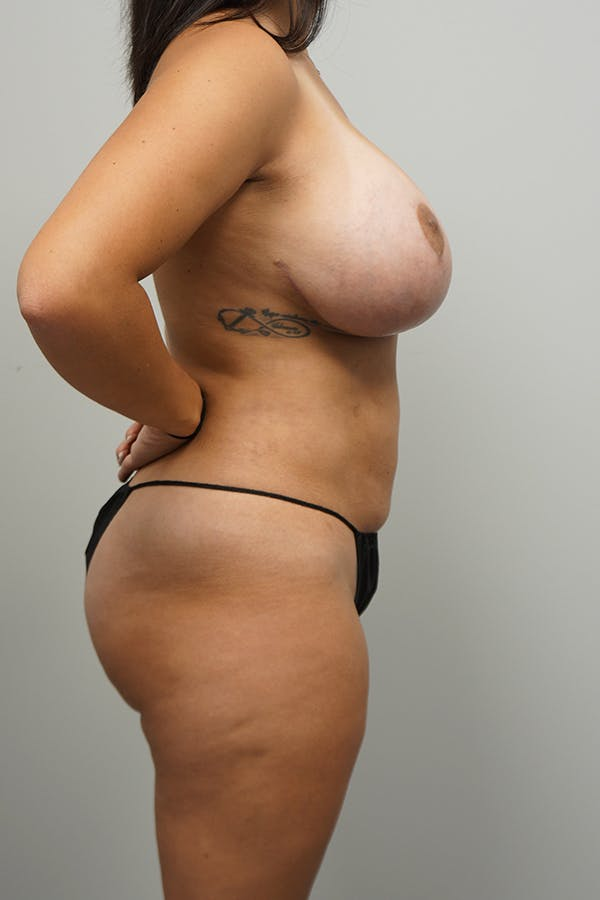 Mommy Makeover Gallery - Patient 11186837 - Image 4