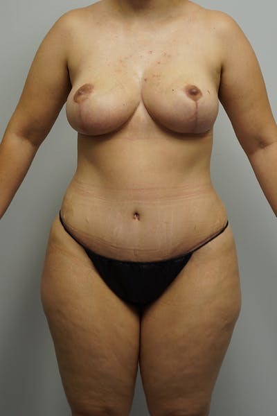 Mommy Makeover Gallery - Patient 11186838 - Image 2