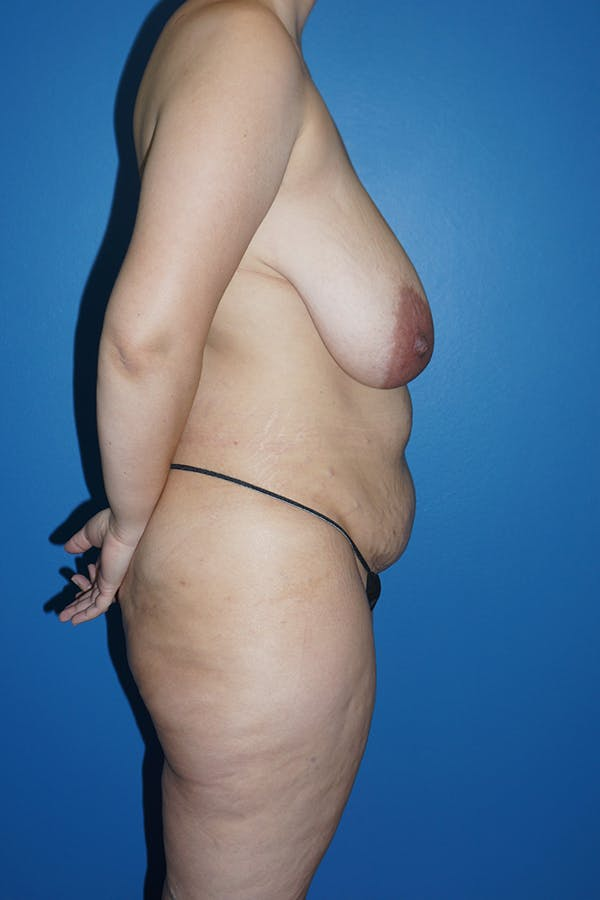 Mommy Makeover Gallery - Patient 11186838 - Image 3