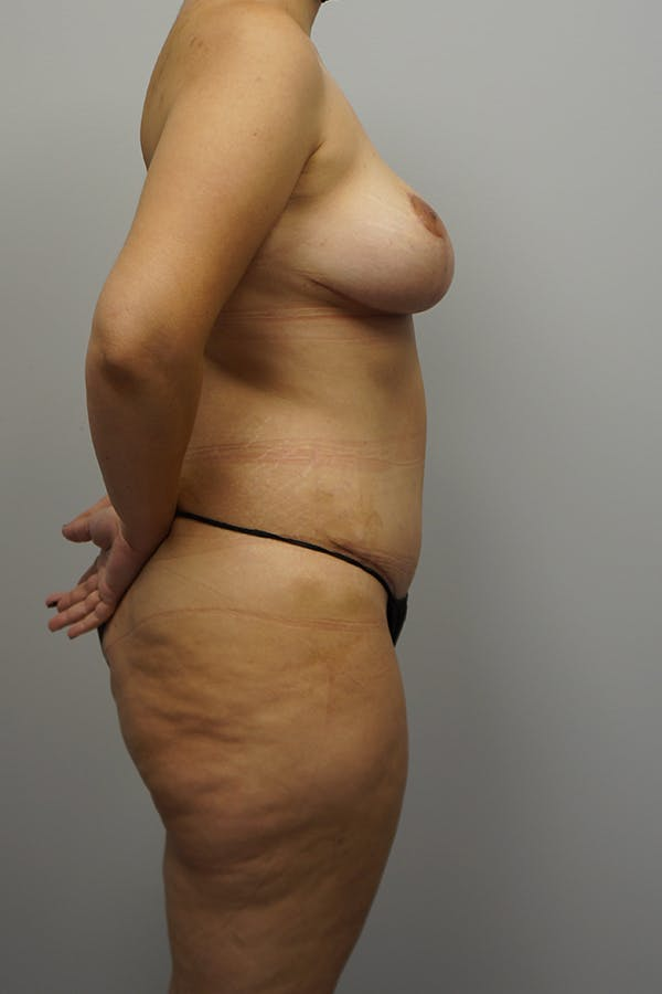 Mommy Makeover Gallery - Patient 11186838 - Image 4