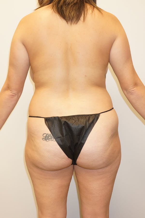 Liposuction Gallery - Patient 11186979 - Image 1