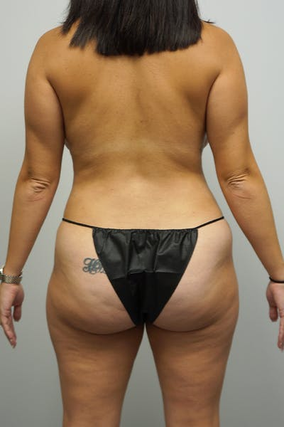 Liposuction Gallery - Patient 11186979 - Image 2
