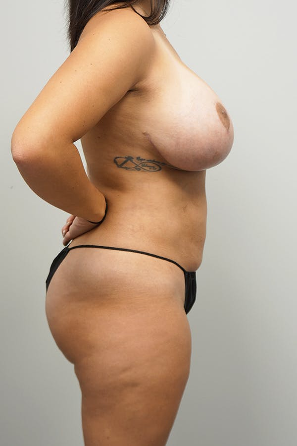 Liposuction Gallery - Patient 11186979 - Image 4