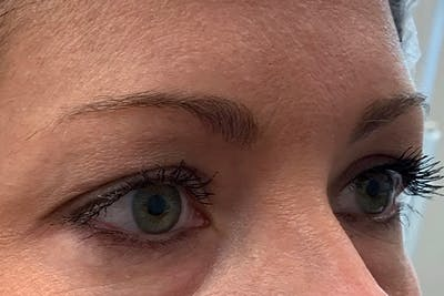 3D Microblading/ Henna Brows Gallery - Patient 11676257 - Image 2
