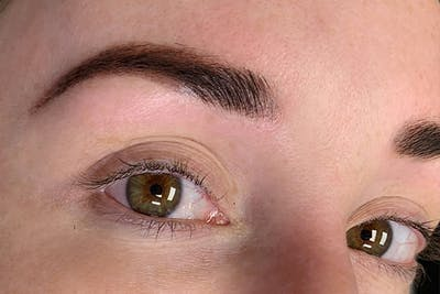 3D Microblading/ Henna Brows Gallery - Patient 11676256 - Image 2