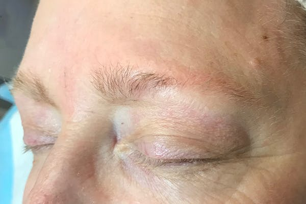 3D Microblading/ Henna Brows Gallery - Patient 11676258 - Image 1