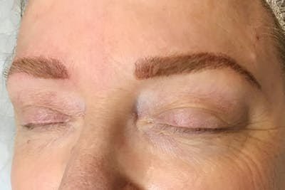 3D Microblading/ Henna Brows Gallery - Patient 11676258 - Image 2