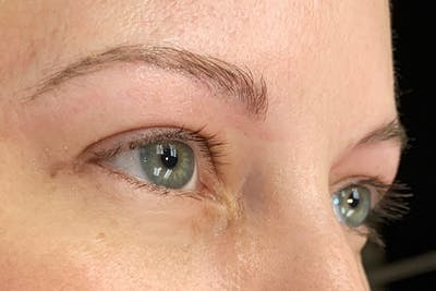 3D Microblading/ Henna Brows Gallery - Patient 11676259 - Image 4