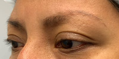3D Microblading/ Henna Brows Gallery - Patient 11676264 - Image 9