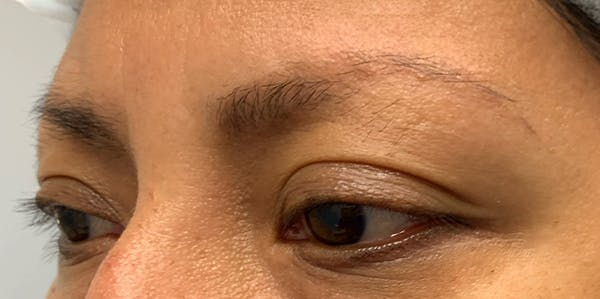 3D Microblading/ Henna Brows Gallery - Patient 11676264 - Image 1