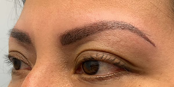 3D Microblading/ Henna Brows Gallery - Patient 11676264 - Image 2