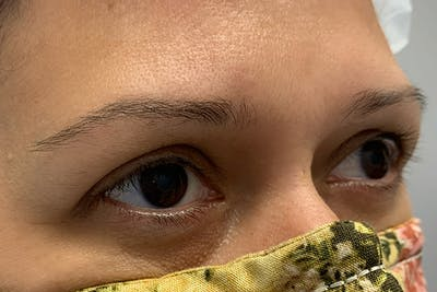 3D Microblading/ Henna Brows Gallery - Patient 11676265 - Image 10