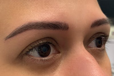 3D Microblading/ Henna Brows Gallery - Patient 11676265 - Image 2