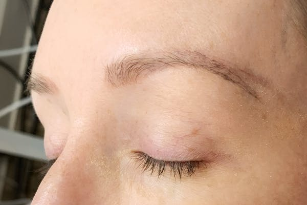 3D Microblading/ Henna Brows Gallery - Patient 11676267 - Image 1