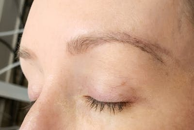 3D Microblading/ Henna Brows Gallery - Patient 11676267 - Image 12