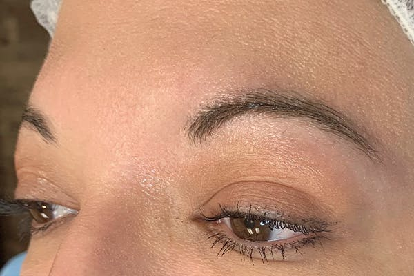 3D Microblading/ Henna Brows Gallery - Patient 11676268 - Image 1
