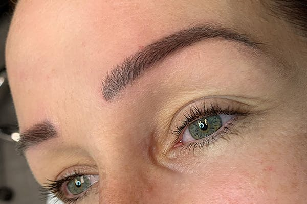 3D Microblading/ Henna Brows Gallery - Patient 11676269 - Image 2