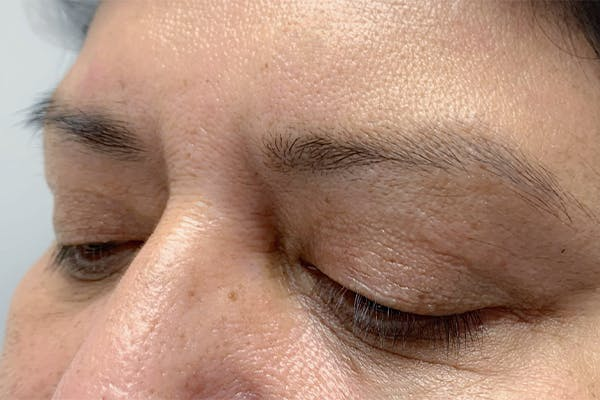 3D Microblading/ Henna Brows Gallery - Patient 11676270 - Image 1
